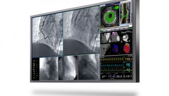 Eizo Enhances Its Surgical And Endoscopy Business With The Introduction Of Its First 3d Surgical Monitors